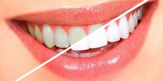 Ini 5 Buah yang Bisa Atasi Karang Gigi Sekaligus Pemutih Gigi