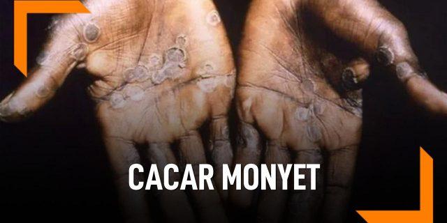 Cara Mencegah Cacar Monyet Dengan Cara Ini
