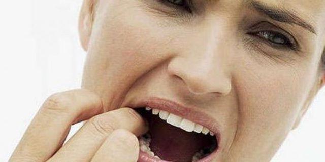 Enam Cara Ini Enyahkan Sakit Gigi